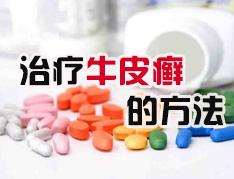 牛皮癣药物治疗要注意什么