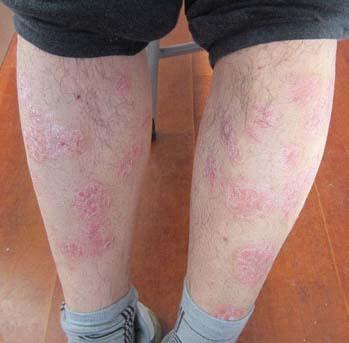 如何诊断银屑病的症状呢