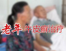 老年银屑病患者更需要及时治疗